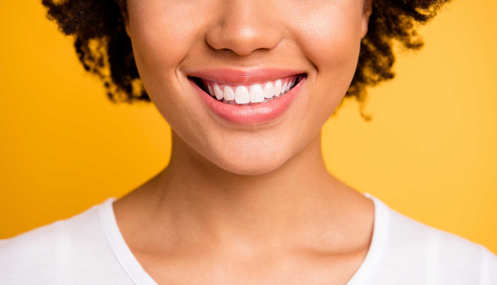 woman after teeth whitening showing her beautiful teeth in a smile