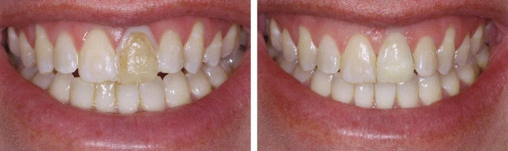 Porcelain crowns before and after.