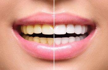 Teeth Whitening Davidson NC