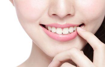 Smiling Woman Cosmetic Veneers